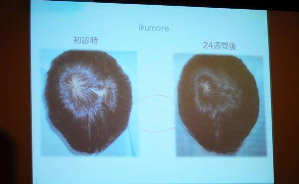 育毛プログラムの結果